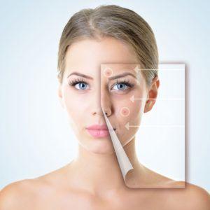 Acne Treatment In Ealing, London