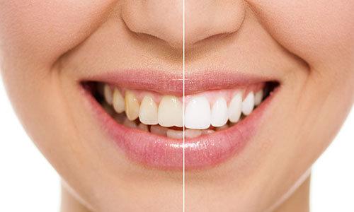 teeth whitening ealing