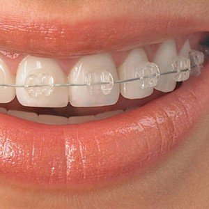 six month smiles - clear braces- ealing london