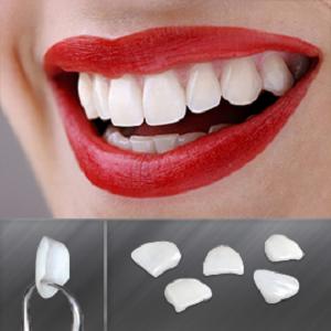 Dental Veneers Ealing, London