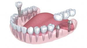 Multiple Implants ealing, London