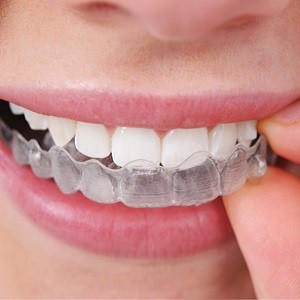 Invisalign Clear Braces - Ealing London