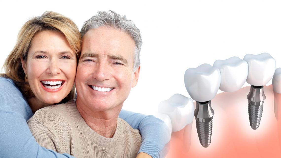Multiple Teeth Dental Implants
