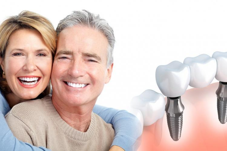 Multiple Teeth Dental Implants
