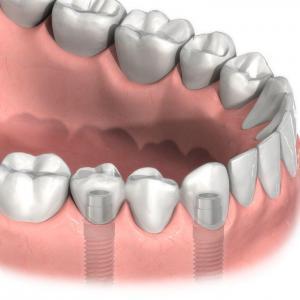 Multiple Tooth Implants In Ealing, London