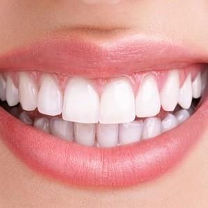 Teeth Whitening Ealing, London