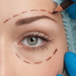 Non Surgical Blepharoplasty London Non Surgical Eye Lift