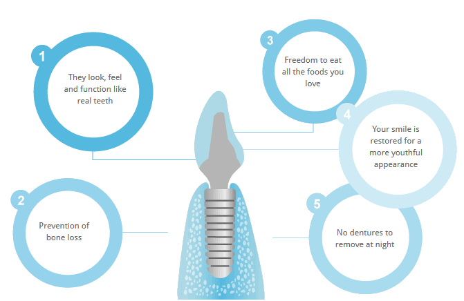 Benefits and advantages of dental implants