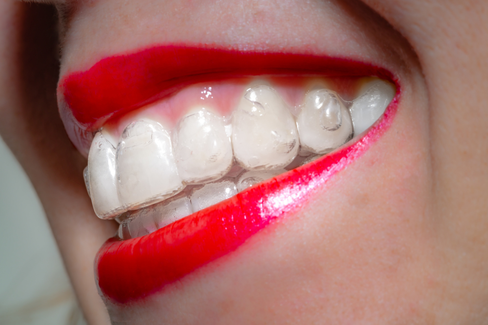 Invisalign Faq How Does Invisalign Work And Is It Right